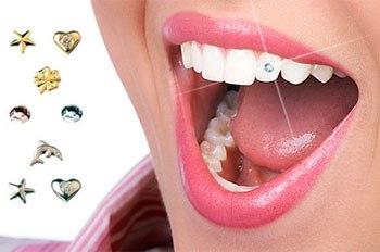 Украшение зубов стразами в Новокузнецке